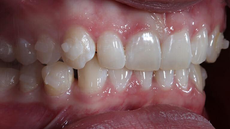 điều trị cắn sâu - răng chen chúc với khay niềng K Clear