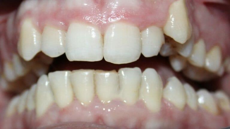 điều trị răng cắn sâu cung hàm lệch lạc với khay niềng K Clear