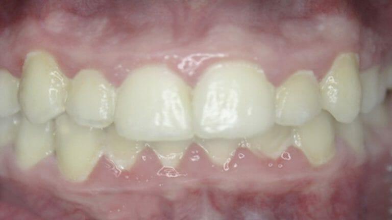 điều trị răng chen chúc với khay niềng răng K Clear của K Line