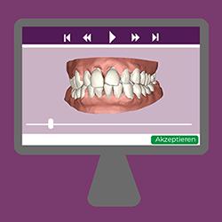 niềng răng kclear trong điều trị 3d