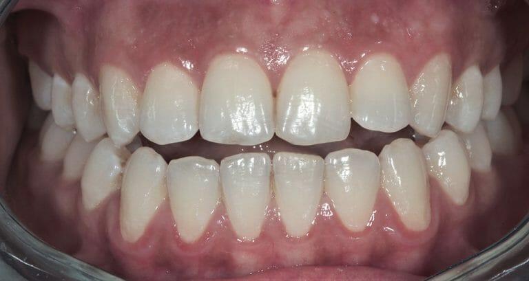 niềng răng k clear khớp cắn hở