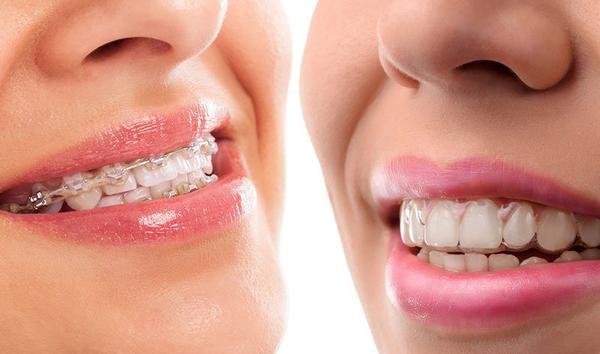 Niềng răng trong suốt và niềng răng mắc cài